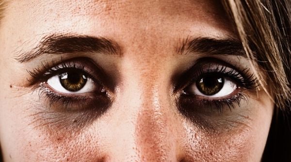 Lack of sleep & poor sleep hygiene is cause of dark circles. So, this is how you are getting them.