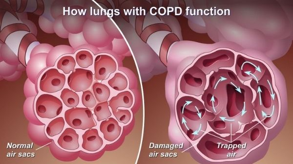 COPD is a group of diseases, leads to poor function of the lungs. Emphysema & chronic bronchitis are common conditions.