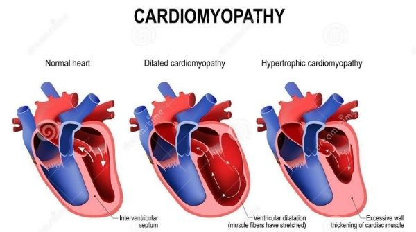 In cardiomyopathy, the main symptom is shortness of breath, heart muscles will become weak &  harder to pump the blood.