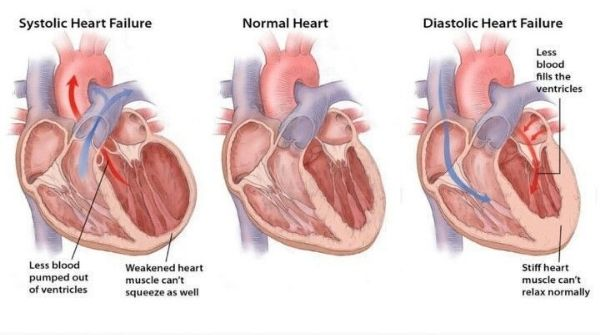 Heart failure arises as a result of the heart not being able to pump blood properly which cause breathing problems.