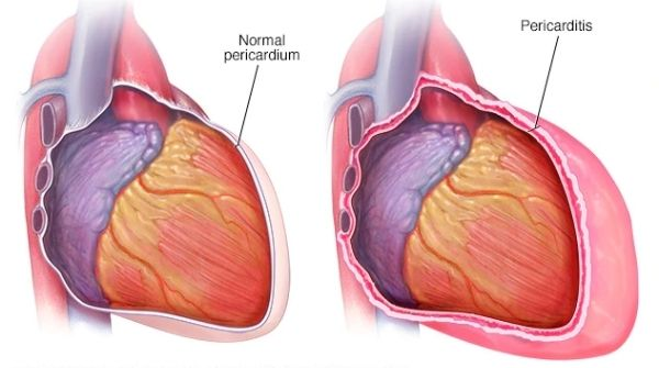 Pericarditis is the inflammation of the pericardium, a thin sack membrane surrounding the heart cause breathing problems.