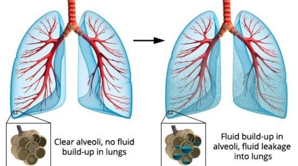 Pulmonary edema conditions will cause an excess of fluid in the lungs. Try to avoid traveling to high altitudes.
