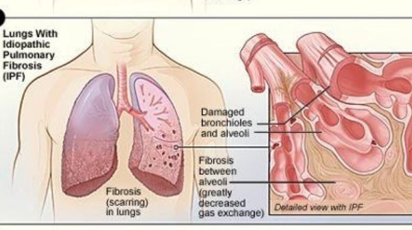 Pulmonary fibrosis will cause scarred and damage to the lung's tissue which can lead to death.