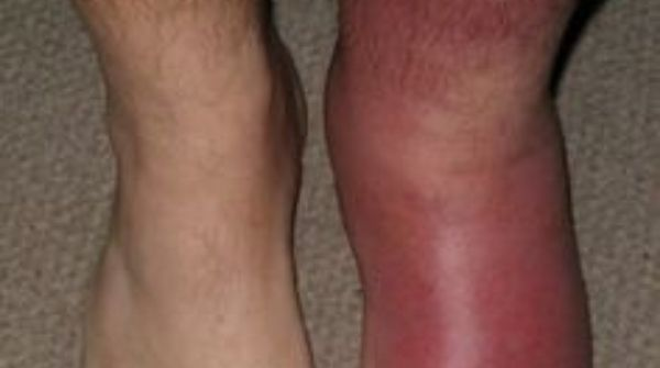 Cellulitis is a type of skin allergy is occurred by a bacterial infection that causes inflammation & redness in skin.