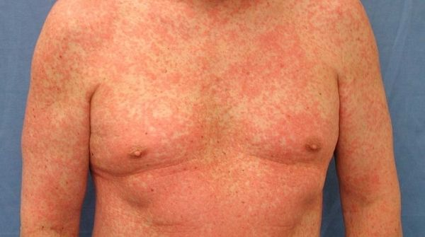 The meaning of the skin rash is, some medicines will produce rashes. Hence it is called as drug eruption.